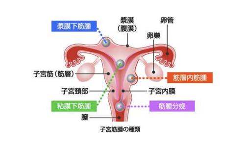 【No.187】子宮筋腫について