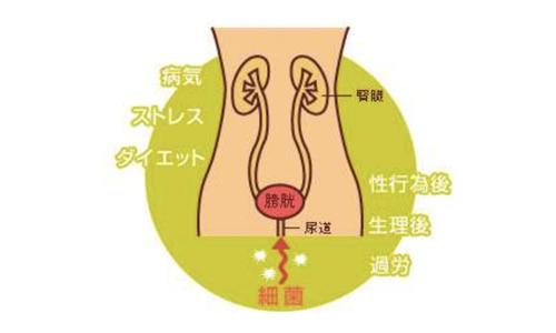 【No.187】膀胱炎について