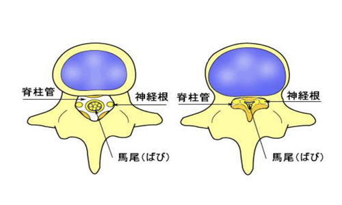 【No.190】腰部脊柱管狭窄症について