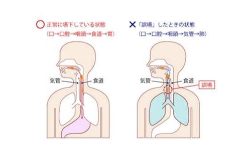 【No.191】誤嚥性肺炎について